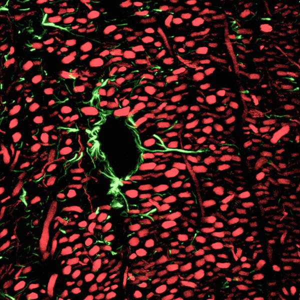 Nerve Cell Photograph - Brain Blood Vessels by C.j.guerin, Phd, Mrc Toxicology Unit/ Science Photo Library