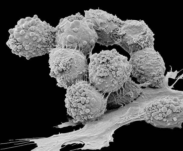 Brain Tumor Wall Art - Photograph - Brain Cancer Cells by Steve Gschmeissner/science Photo Library