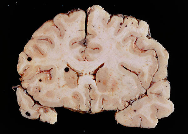 Brain Cancer Wall Art - Photograph - Brain Cancer by Cnri/science Photo Library
