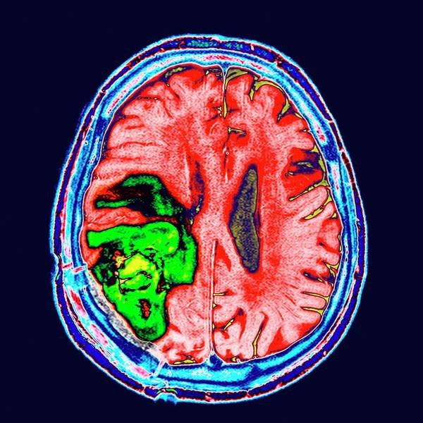 Neoplasm Photograph - Brain Cancer by Dr P. Marazzi