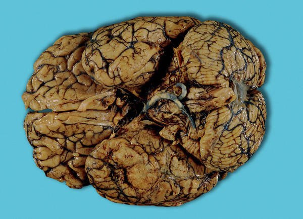 Carcinoma Wall Art - Photograph - Brain Cancer by Medimage/science Photo Library