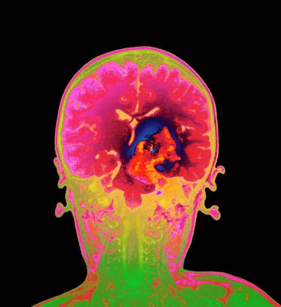 Brain Cancer Wall Art - Photograph - Brain Cancer Mri by Mehau Kulyk/science Photo Library