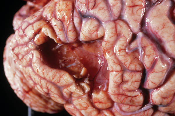 Softening Photograph - Brain Damage by Cnri/science Photo Library