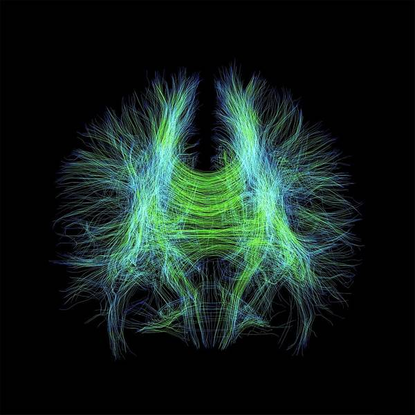 Cerebrum Photograph - Brain Fibres by Sherbrooke Connectivity Imaging Lab/science Photo Library