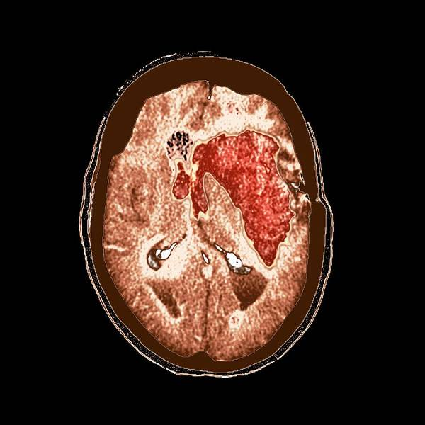 Medical Imaging Photograph - Brain Haemorrhage by Science Photo Library