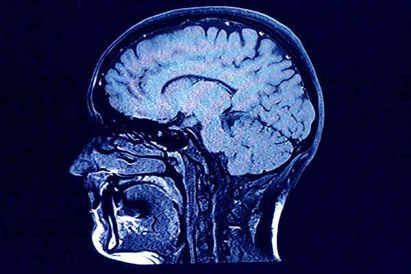 Brain Head Scan Art Print by Roxana Wegner