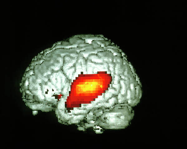 Neurology Photograph - Brain Hearing Sound by Wellcome Dept. Of Cognitive Neurology/ Science Photo Library