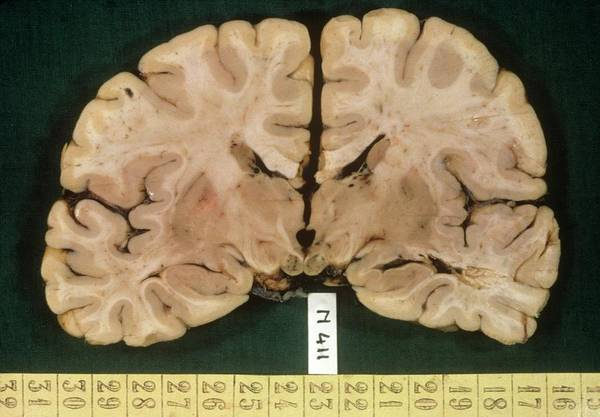 Wall Art - Photograph - Brain In Wernicke's Disease by Cnri/science Photo Library