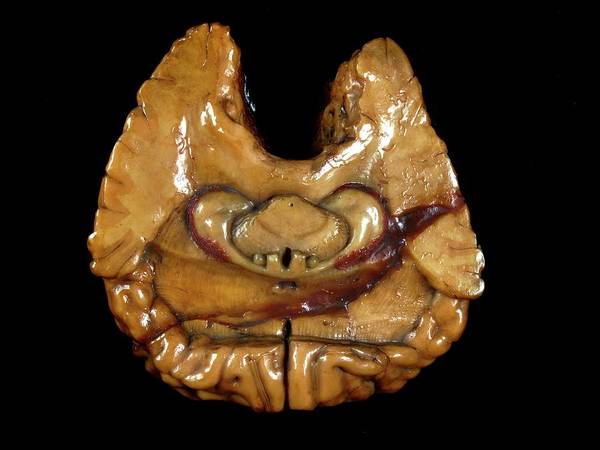 Anatomical Model Photograph - Brain Model by Javier Trueba/msf
