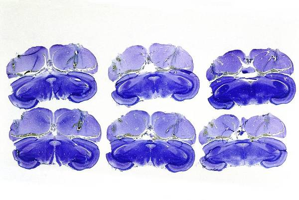 Histology Wall Art - Photograph - Brain Of A Quail by Sinclair Stammers/science Photo Library.