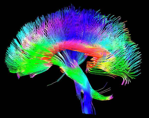 Cerebrum Photograph - Brain Pathways by Tom Barrick, Chris Clark, Sghms
