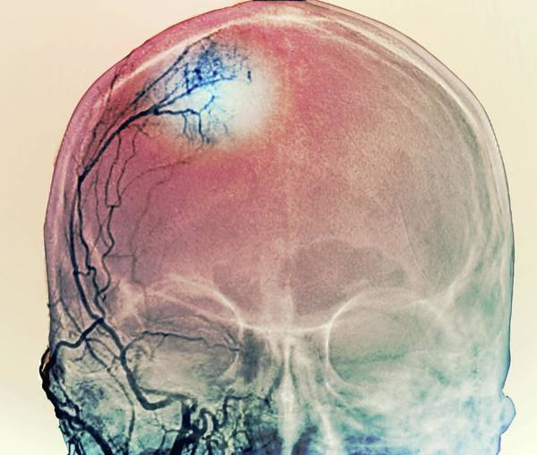 Temporal Bone Wall Art - Photograph - Brain Tumour Blood Supply by Zephyr/science Photo Library