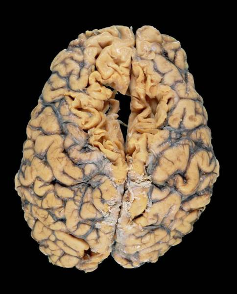 Brain Tumor Wall Art - Photograph - Brain Tumour by Medimage/science Photo Library