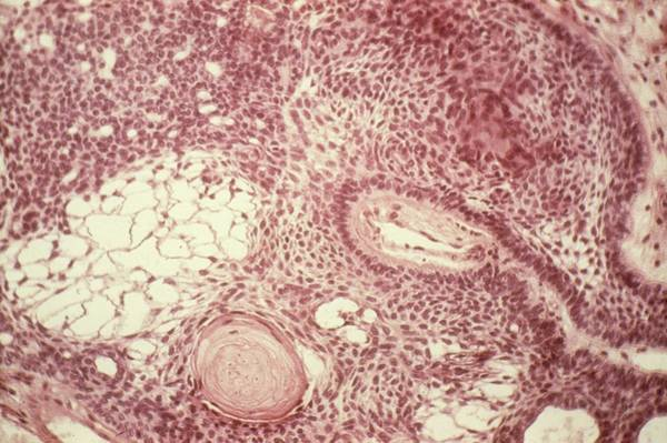 Neoplasm Photograph - Brain Tumour by Pr. S. Brion/cnri