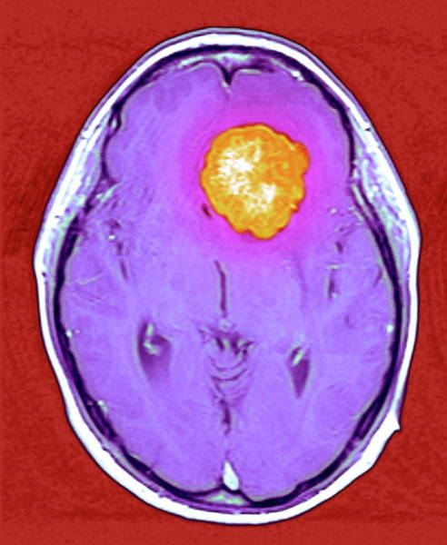 Brain Cancer Wall Art - Photograph - Brain Tumour by Simon Fraser/royal Victoria Infirmary, Newcastle-upon-tyne/science Photo Library