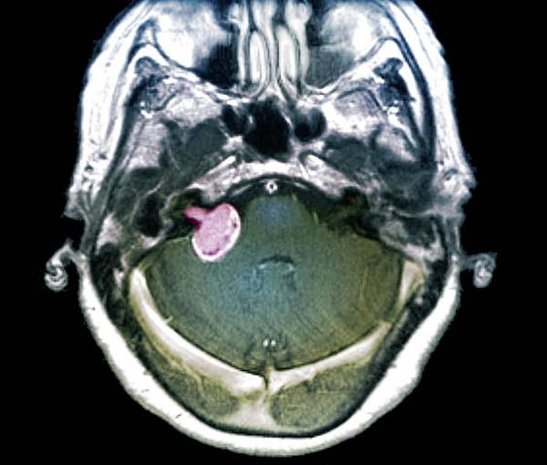 Neoplasm Photograph - Brain Tumour by Zephyr