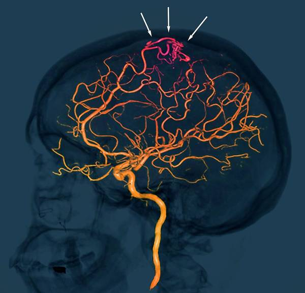 Cerebral Angiogram Photograph - Brain Vascular Abnormality by Zephyr/science Photo Library