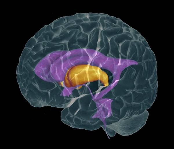 Neurology Photograph - Brain Ventricles by Zephyr/science Photo Library