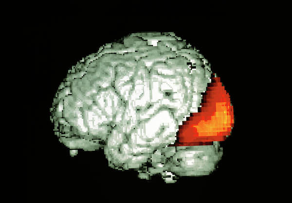 Neurology Photograph - Brain Viewing Images by Wellcome Dept. Of Cognitive Neurology/ Science Photo Library