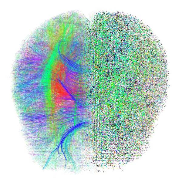Pixel Photograph - Brain White Matter Fibres Dissolving by Alfred Pasieka/science Photo Library