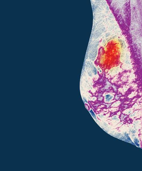 Neoplasm Photograph - Breast Cancer by Dr P. Marazzi