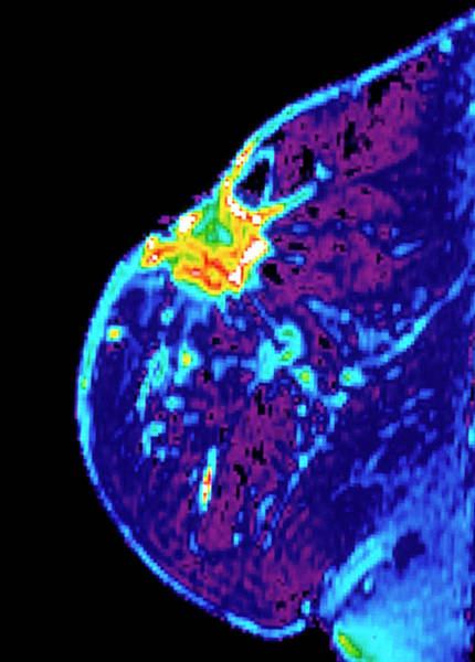 Cancer Wall Art - Photograph - Breast Cancer by National Cancer Institute/science Photo Library