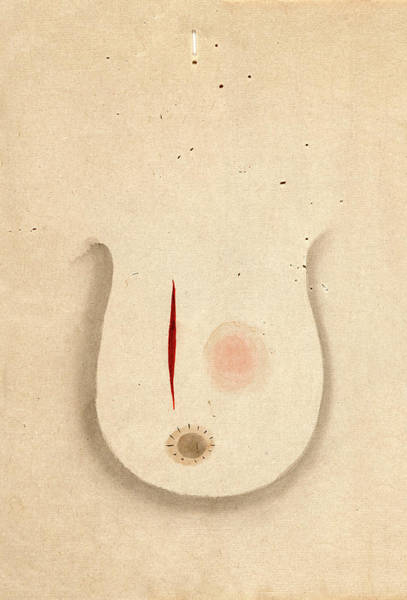 Carcinoma Wall Art - Photograph - Breast Cancer Surgery by National Library Of Medicine