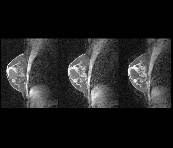 Radiological Photograph - Breast Cyst by Zephyr