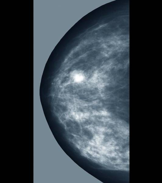 Medical Imaging Photograph - Breast Lump by Zephyr/science Photo Library