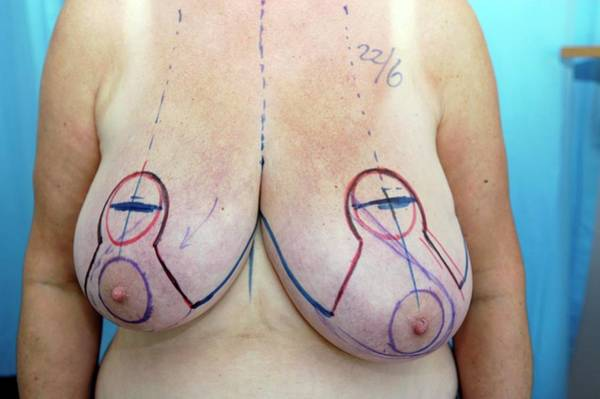 Plastic Surgery Wall Art - Photograph - Breast Surgery by Science Photo Library