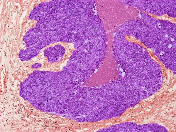 Neoplasm Photograph - Brenner Tumour Of The Ovary by Steve Gschmeissner