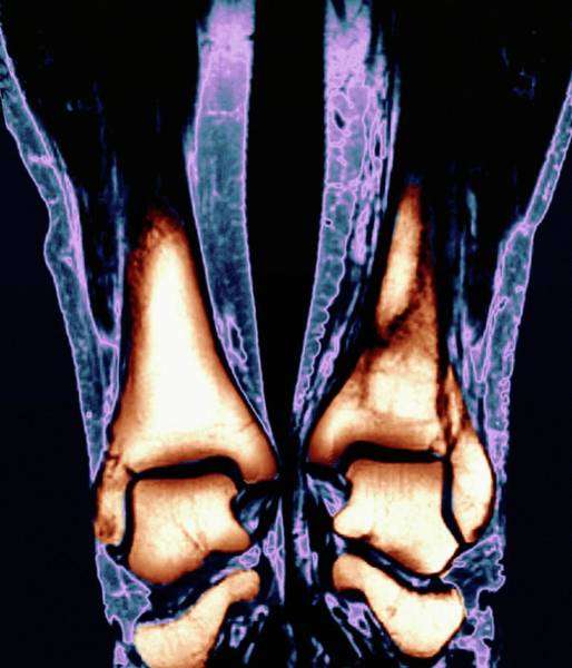 Medical Imaging Photograph - Broken Ankle by Zephyr/science Photo Library