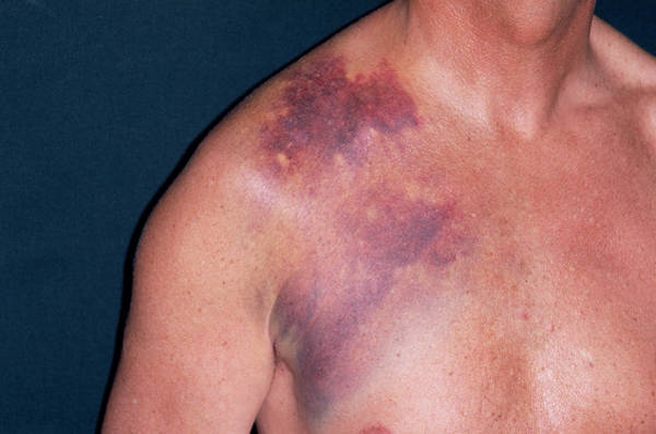 Wall Art - Photograph - Broken Collarbone by Dr P. Marazzi/science Photo Library