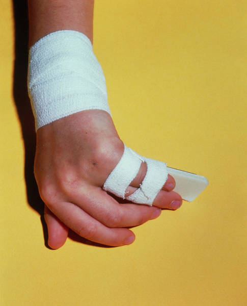 Bandage Photograph - Broken Little Finger Bandaged And Splinted by Alex Bartel/science Photo Library