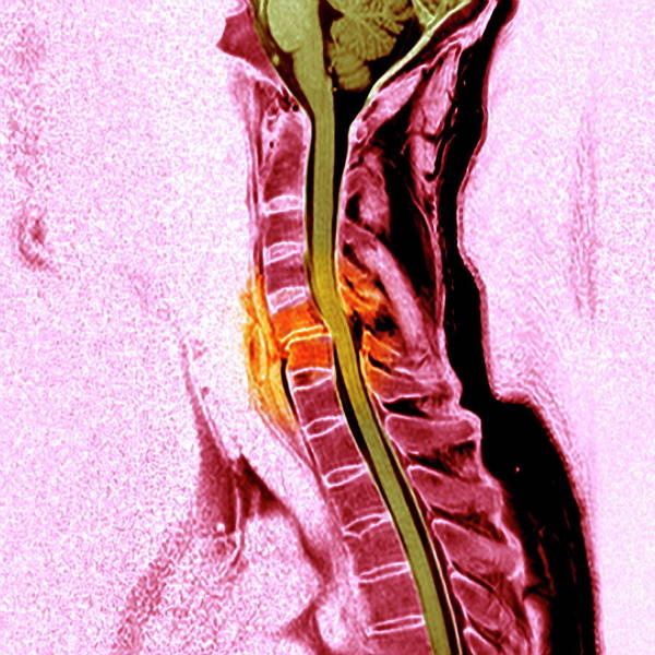 C6 Wall Art - Photograph - Broken Neck by Simon Fraser/newcastle Hospitals Nhs Trust/science Photo Library