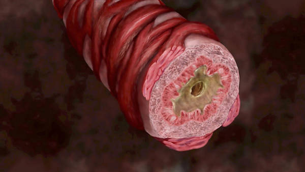 Carbon Fiber Photograph - Bronchiole Closed With Mucus, 3 Of 3 by Anatomical Travelogue