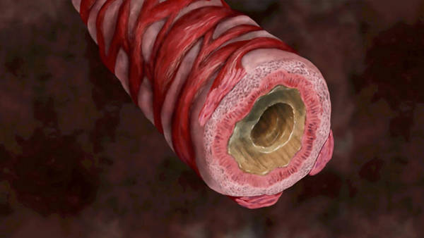 Carbon Fiber Photograph - Bronchiole Partially Filled With Mucus by Anatomical Travelogue
