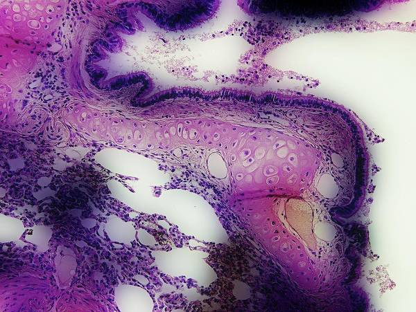 Bronchus Photograph - Bronchus In Lung Tissue by John Griffin, University Of Queensland/science Photo Library