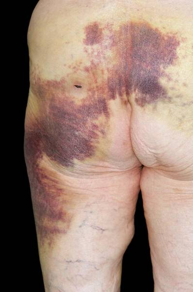 Bleeding Photograph - Bruised Buttock by Dr P. Marazzi/science Photo Library