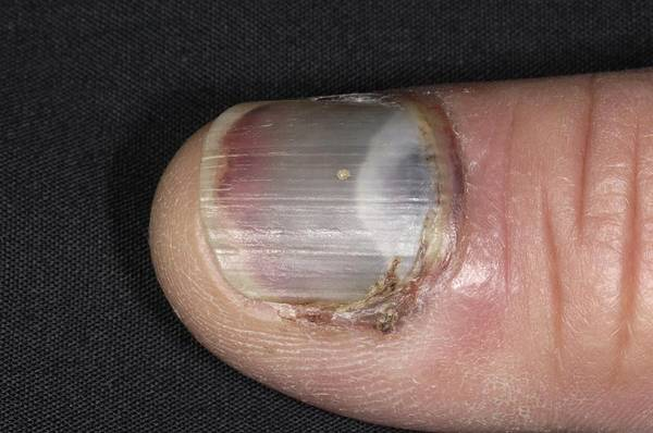 Wall Art - Photograph - Bruised Fingernail by Dr P. Marazzi/science Photo Library