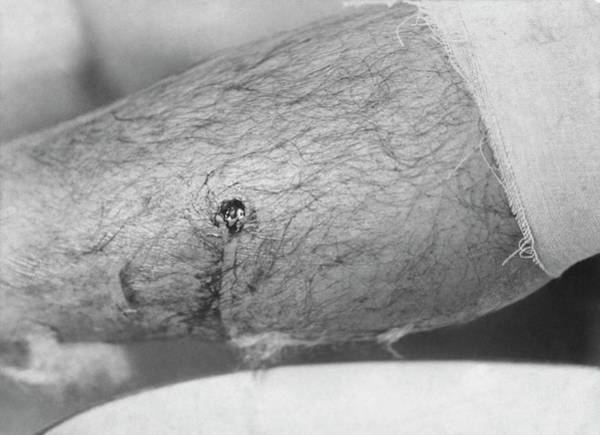 Injury Wall Art - Photograph - Bullet Entry Wound by Library Of Congress