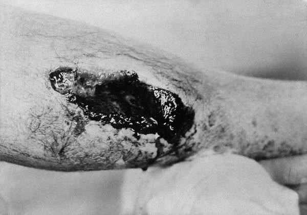 Injury Wall Art - Photograph - Bullet Exit Wound by Library Of Congress