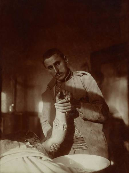 Injury Wall Art - Photograph - Bullet Wound by Library Of Congress