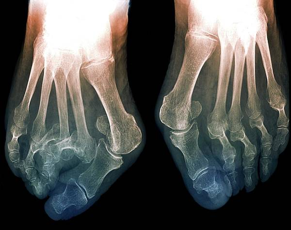 Radiological Photograph - Bunions by Zephyr