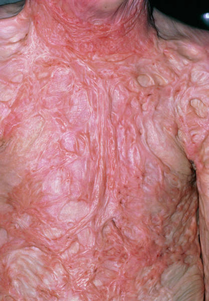 Severe Wall Art - Photograph - Burns: Severe Scarring On Chest Of Boy Aged 9 by Dr P. Marazzi/science Photo Library