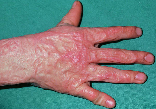 Severe Wall Art - Photograph - Burns: Severe Scarring On Hand Of Boy Aged 9 by Dr P. Marazzi/science Photo Library