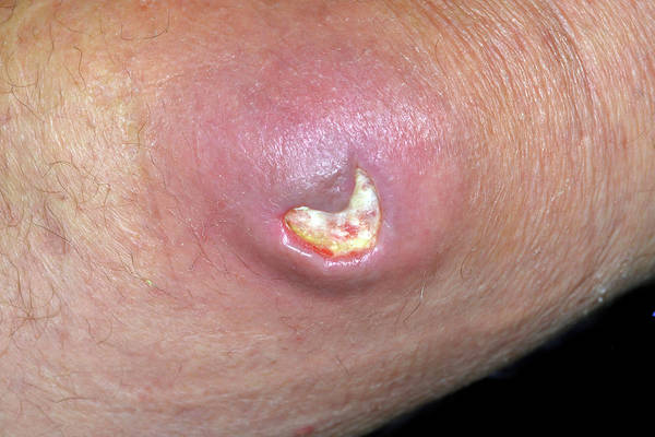 Bump Wall Art - Photograph - Bursitis Of The Elbow After Drainage by Dr P. Marazzi/science Photo Library