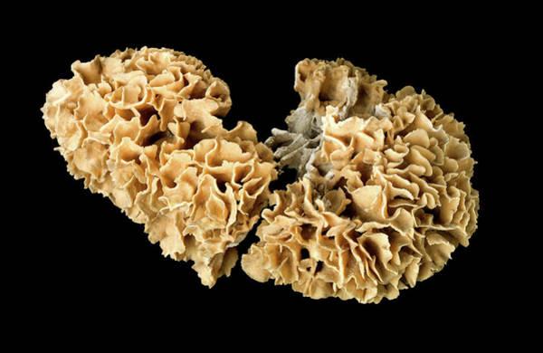 Cnidaria Photograph - Cactus Coral by Natural History Museum, London