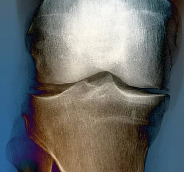 Radiological Photograph - Calcification In The Knee by Zephyr