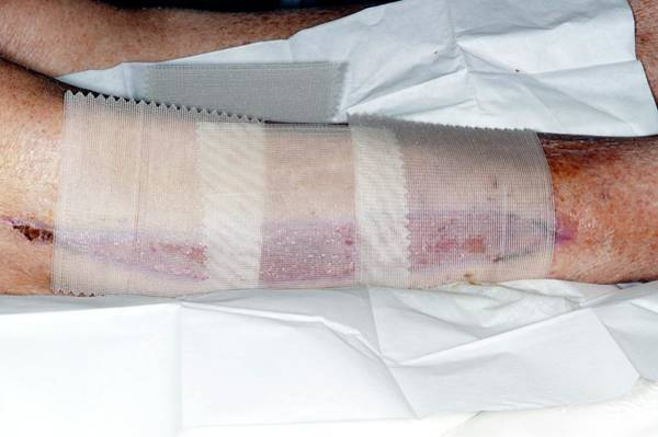 Bandage Photograph - Calf Fasciotomy After Artery Surgery by Dr P. Marazzi/science Photo Library